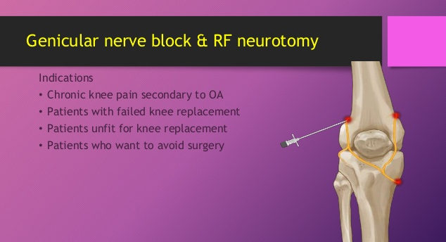 How to Bill CPT Code for Genicular Nerve Block RFA